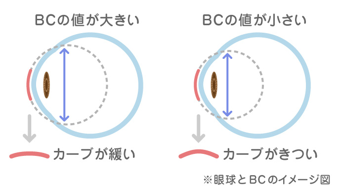 眼球とBCのイメージ図